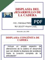 displasiadeldesarrollodelacadera