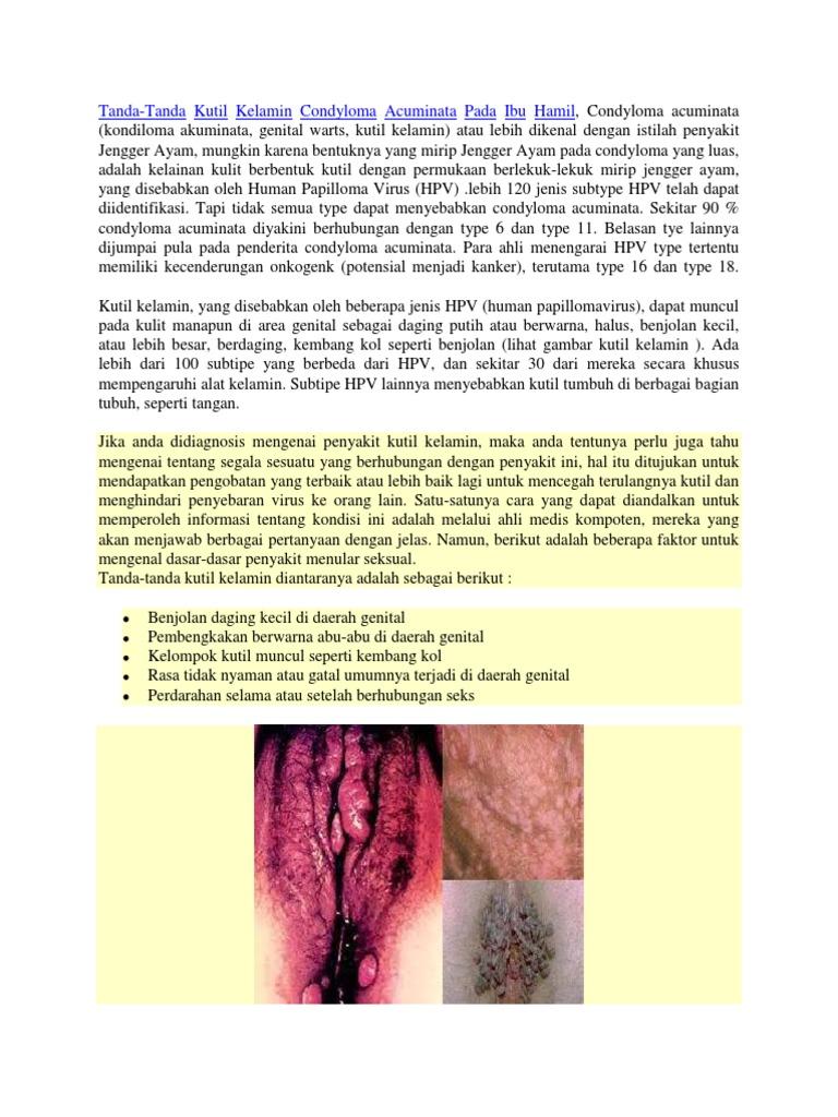 Papiloma adalah. TU SALUD: Cáncer de Hígado, consejos alimentarios | Liver disease