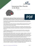 Cum Lucreaza Efectul Placebo Asupra Creierului