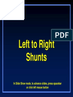 Lt or Shunts