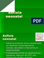 Asfixia Neonatal Lista