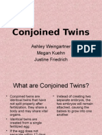 exConjoined twins.ppt