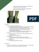 Pencegahan, Komplikasi & Prognosis Filaria