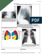 X-rays Thorax Anatomy