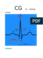 ECG made easy by Mallareddy Sripuja