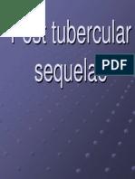 Post Tubercular Sequelae.123175034