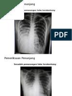 Pneumo Thorax