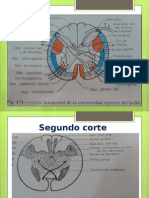3._Bulbo_Raquídeo[1]