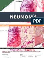 Neumonia y Tep [Autoguardado]