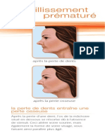 ML0103F French Dental Implants Patient Ed