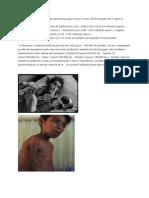 incidenta tuberculozei