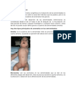 Anomalías Congénitas Informe Exposicion