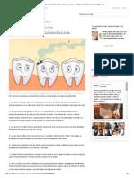 Diez Datos Que Debes Saber Sobre Las Caries - Colgate Salud Bucal en Prodigy MSN