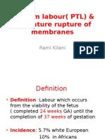 32- Preterm Labour
