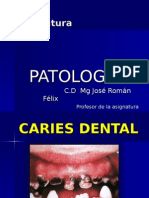 Caries y Pulpitis e Inflamacion (1)