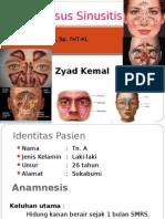 243010043 Sinusitis Zyad Indonesia Ppt