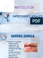 Infecciones virales - Dermatología