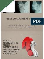 Osteoarthritis Thumb 2014