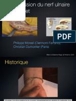 3-6 Compression du nerf ulnaire au canal de Guyon
