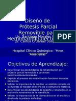 disenoprotesisparcialremoviblehemimandibulectomias