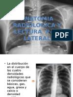 Anatomia Radiologica y Lectura de P-A y Lateral
