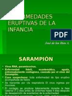 2 ENFERMEDADES ERUPTIVAS  22-10.ppt