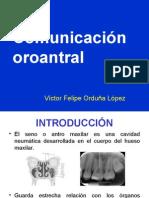 Comunicación oroantral