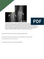 gambar psoriatic arthritis.docx