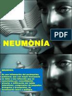 neumoniapediatrica-100827015030-phpapp01