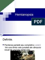Hemianopsia.ppt