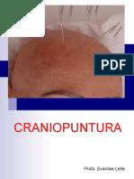 Craniopuntura- Profa. Eva