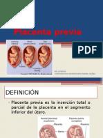 placentapreviavasaprevia-130820225524-phpapp01.pptx