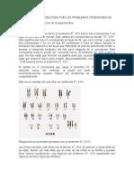 ENFERMEDADES PRODUCIDAS POR LOS PROBLEMAS CROMOSÓMICOS.docx