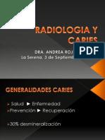 Radiologia y Caries