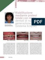 Riabilitazione Mediante Protesi Totale Con Resine Dentali Di Nuova Generazione Sistema Eclipse