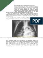 Diagnosis Radiologi Pada Kasus Hernia Diafragmatika