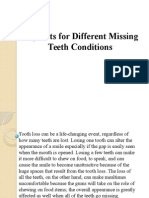 Implants for Different Missing Teeth Conditions