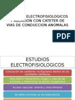 Estudios Electrofisiologicos y Ablacion Con Cateter de Vias
