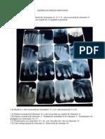 Radiologia - Lesoes Do Orgao Dentario