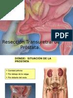 CASO CLINICO PROSTATA.pptx