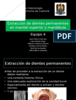 Extraccion de Dientes Permanentes