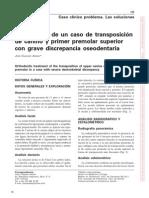 transposicion