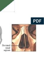 Huesos nasales - Generalidades