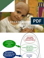 Leucemia Linfoide Aguda 2014