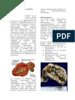 Colecistitis Aguda - Plus Medica