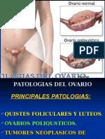 Patologías de Ovarios