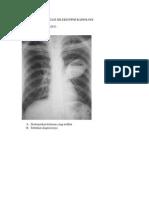 Contoh Soal Ujian Tulis Seleksi Ppds Radiologi