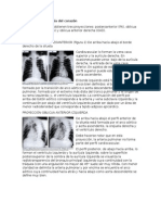 Capítulo 7 Radiología Del Corazón