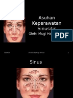 Askep Sinusitis