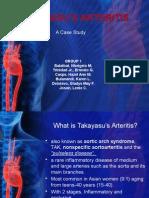 takayasu's arteritis